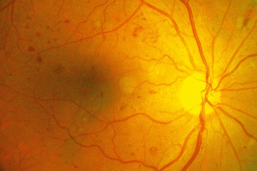 wichita diabetic retinopathy