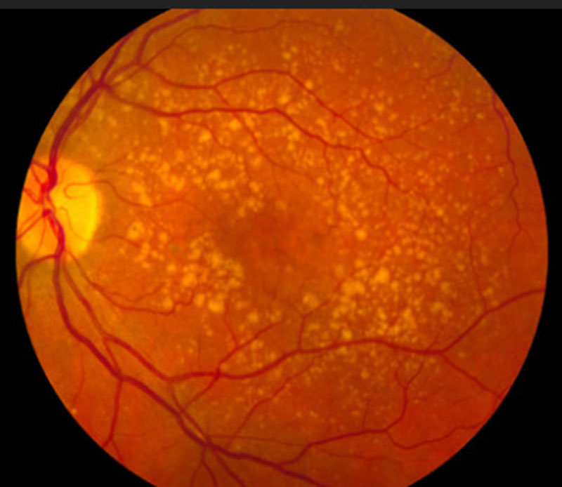 wichita macular degeneration