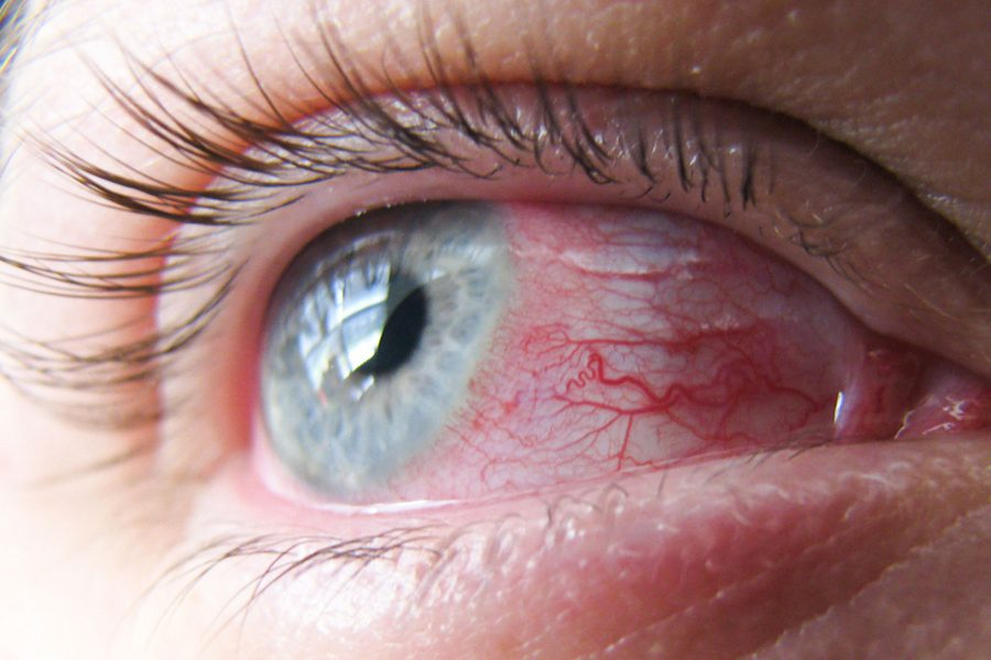 Chemical Eye Burns Wichita KS